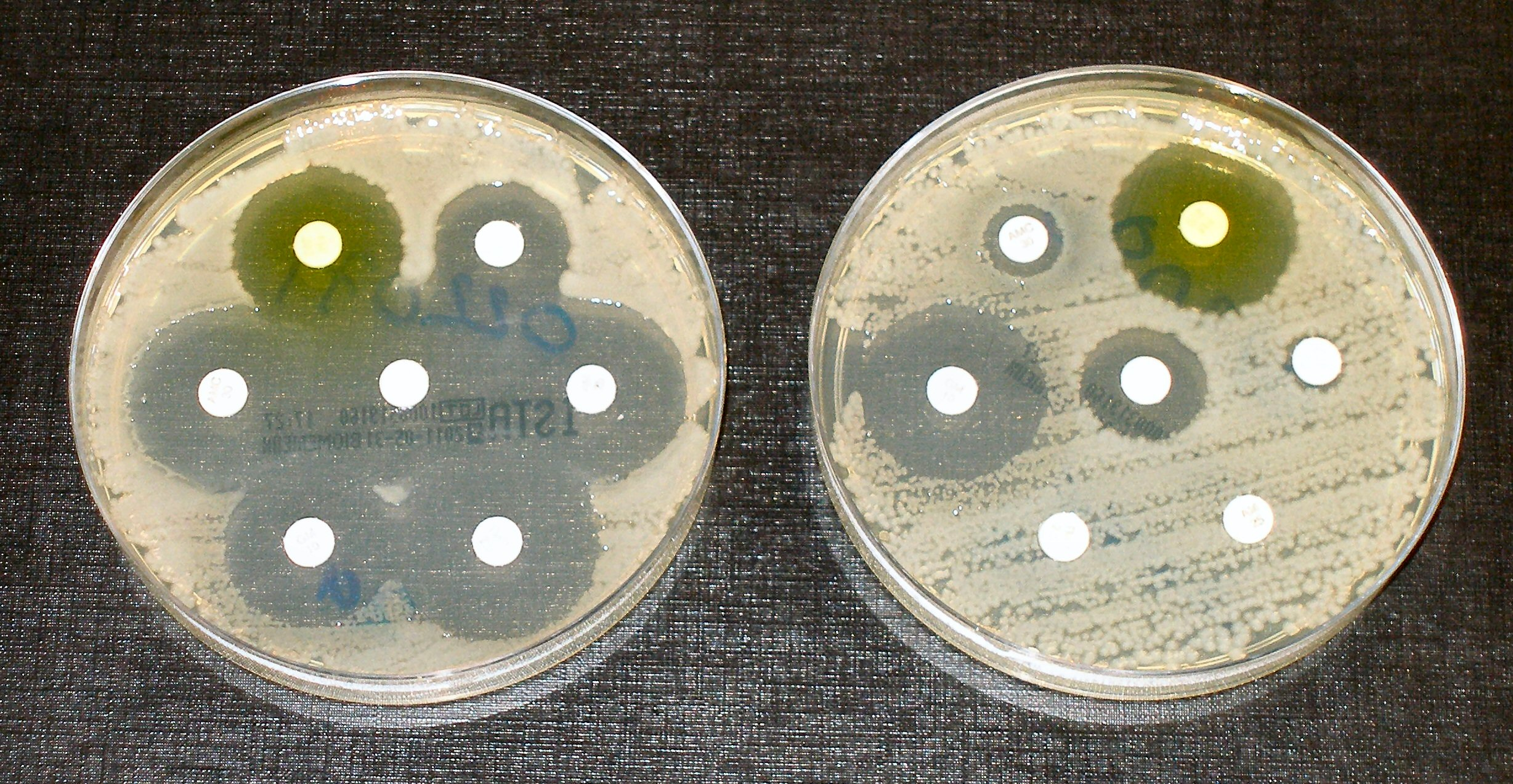 Antibiotic resistance tests; the bacteria in the culture on the left are sensitive to the antibiotics contained in the white paper discs. The bacteria on the right are resistant to most of the antibiotics. (Dr Graham Beards/Wikimedia Commons)