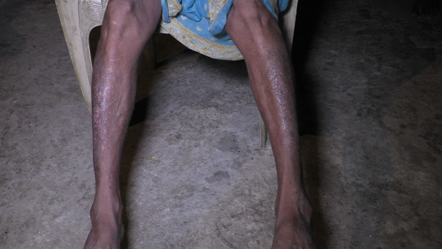 An Adivasi resident of Rola shows the rashes caused by contaminated creek water near the Srisol factory. Photo credit: Priyank Patel
