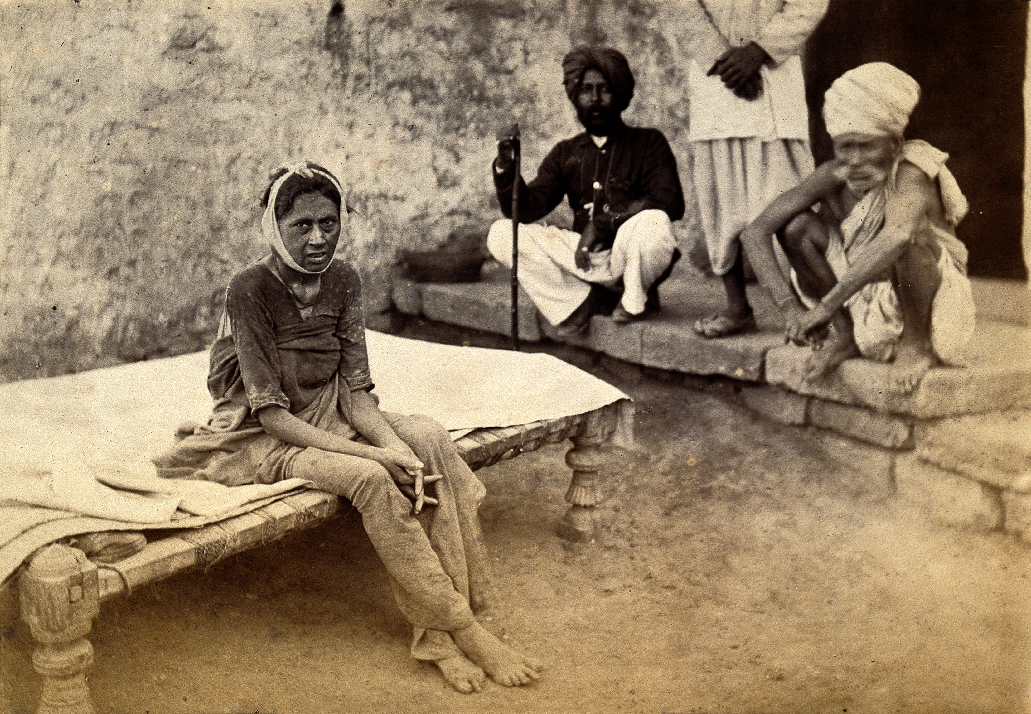 A patient in Karachi suffering bubonic plague in 1882 when the disease spread from Bombay. (Photo: Wellcome Library, London/Wikimedia Commons)