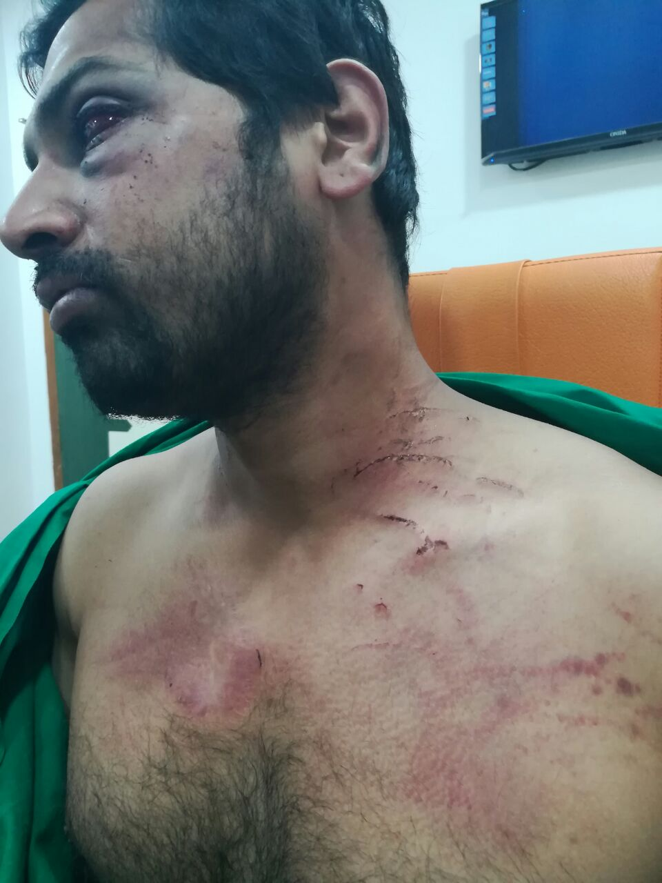 Dr Rohan Mhamunkar who was assaulted by relatives of a patient in Dhule. (Photo: Resident doctors association)