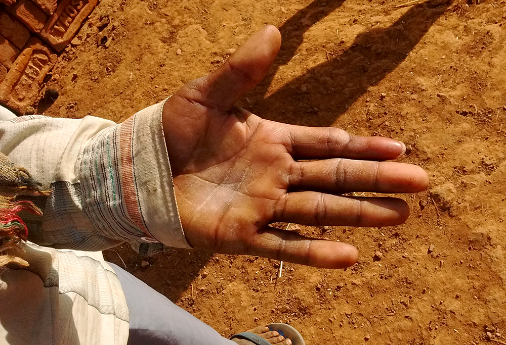 Sudhna Asur's index finger was crushed in a mine accident. He spent Rs 10,000 on medical treatment.