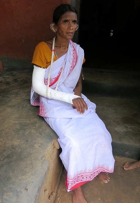 Gadesi Digal was hit by a bullet in her right wrist. Her husband Kukala died in the firing. Photo by Chitrangada Choudhury.