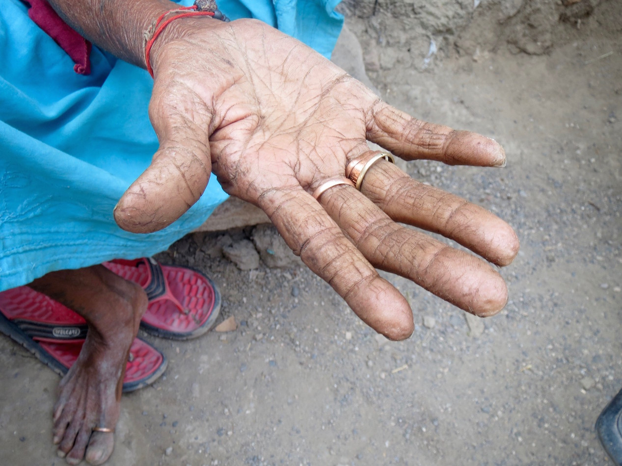 An old woman in Gujarat showed the cracked skin of her palms. Photo credit: Anumeha Yadav